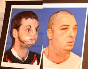 norris_face_transplant